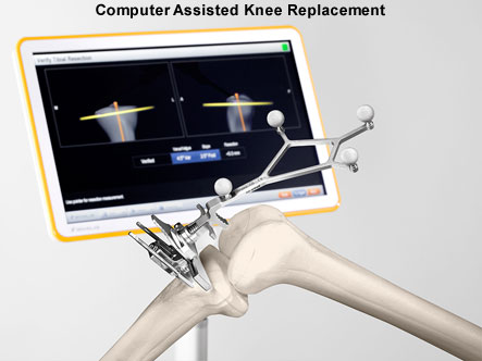 COMPUTER-ASSISTED KNEE REPLACEMENT SURGERY..... Dr. Ashwani Maichand